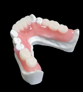 DigiPartial® lower denture